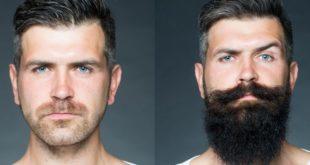 Результаты использования касторового масла для роста бороды