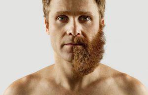 Результат использования касторового масла для бороды